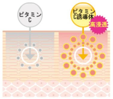BIRAI ソワン ビタミンC誘導体