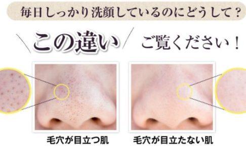 Tp200ホワイトソープ 口コミ 毛穴が目立つ肌と毛穴が目立たない鼻